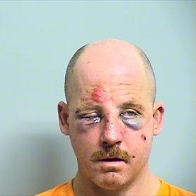 Photo of suspect who was beaten by his victim
