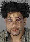 beaten-man